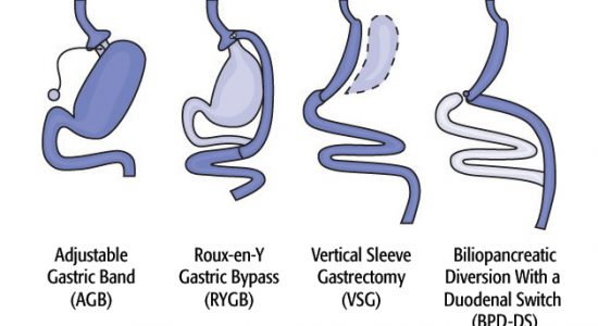 Diagram of Surgical Options
